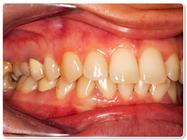 how to stop early gingivitis