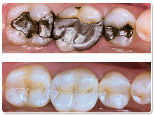 how to clean composite fillings home remedies