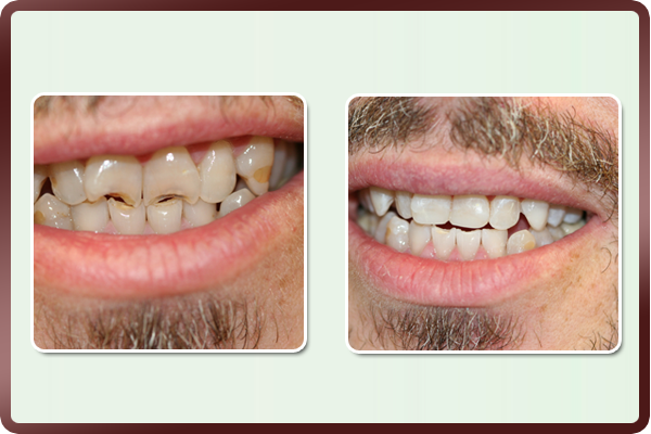 This software engineer had old & stained fillings with broken down front teeth. Dr. Daftary performed cosmetic treatment to restore his smile. His upper teeth were restored with new fillings to match his whitened teeth, and bondings were placed to repair the broken teeth, giving him an enhanced, natural smile to improve his self-esteem.