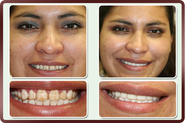 This young woman restricted her natural smile due to deformed & stained enamel in her front teeth. Porcelain veneers are placed on eight of her upper teeth to correct the enamel appearance. Her smile is restored by Dallas cosmetic dentist Dr. Daftary with teeth that look naturally best! Now she cannot stop smiling.