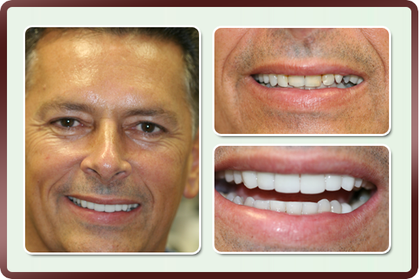 This gentleman had unevenly positioned teeth with old fillings and wanted to improve his dental esthetics. Porcelain veneers on his upper front teeth by Dr. Daftary gave him his long desired face lift.