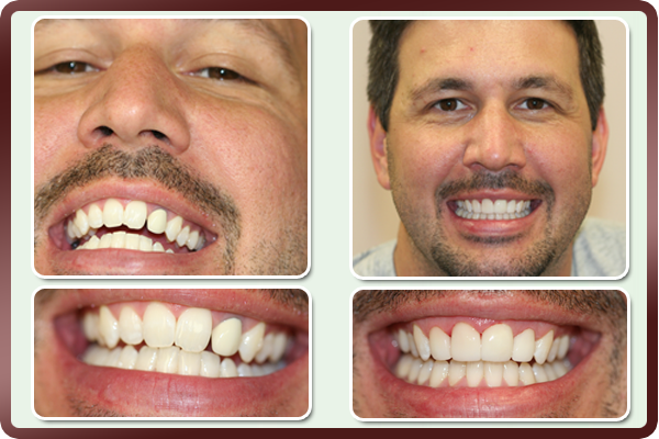This sales representative employed by a big IT firm did not like his smile. His front teeth had an old crown and also chipped teeth with gaps. Placement of porcelain veneers on these teeth by Dr. Daftary gave a natural and even appearance to his smile. Now he smiles during his presentation while successfully closing mega sales deals.