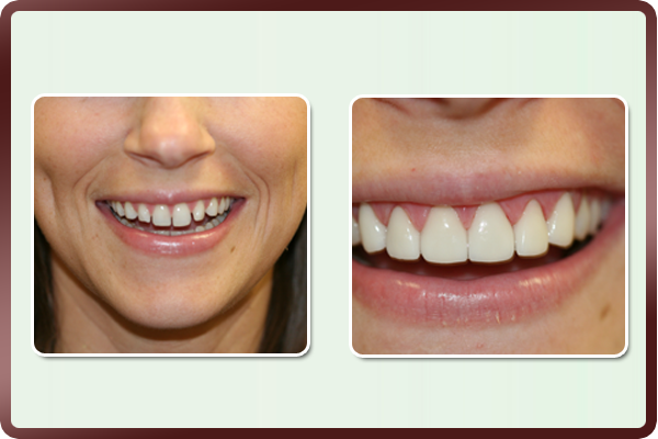 This young lady had many gaps in the front teeth and did not want to go through orthodontic braces. Porcelain veneers on her front teeth closed the spaces giving an even smile & improving the esthetics and self confidence.
