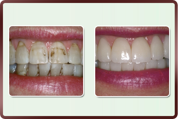 This lady had many fillings in her front teeth that had been replaced more than once. There was irregular shades & staining of teeth due to multiple fillings done over a period of time. Porcelain veneers are placed on upper & lower front teeth, giving a new life to her smile. Teeth are shaped for a natural look and yet impart an attractive younger smile.