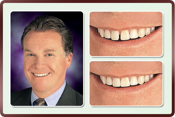 This man with had a large space between his two front teeth which is a very common dental problem among many people. After thinking about it for years, and discussing it thoroughly with Dr. Daftary, he finally decided to correct it with cosmetic bonding and was happily surprised with the results.