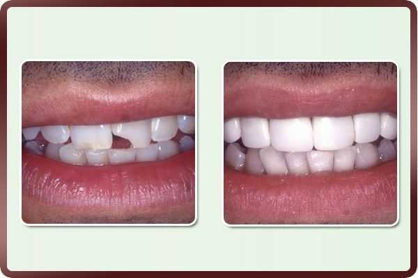 Both the above patients restricted their smile due to broken & unsightly front teeth. These teeth had fractured at the edges during a minor injury and kept breaking away gradually. Their smile was restored back to normal by simply bonding the affected area to resemble other natural teeth. A beautiful repair job gave them the confidence to smile again.