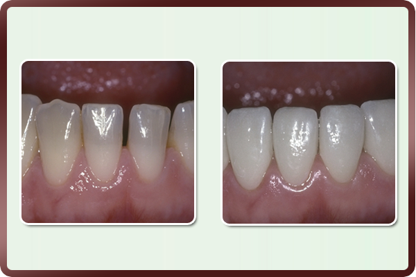 This young woman was extremely conscious of the spaces in her lower front teeth and desired a more even & improved performance. Porcelain veneers on these six lower teeth helped fulfill her desire. She was amazed with results possible in just two visits.