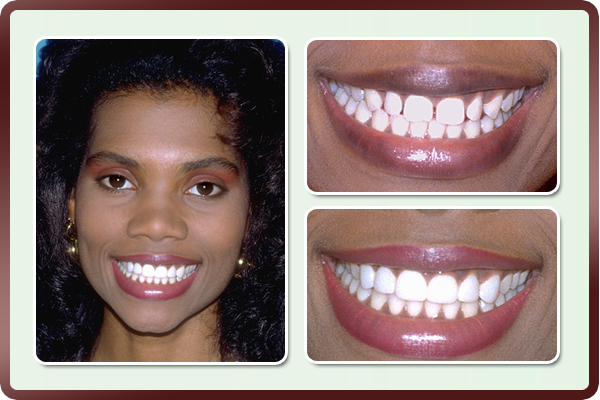 Another case of an attractive young woman with unsightly spaces in front teeth. Porcelain veneers did wonders to her smile.