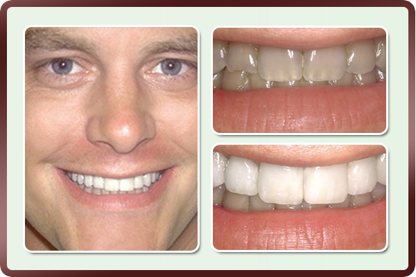 This young man had dark and brittle teeth due to developmental problems during teeth formation. Porcelain veneers on his front teeth helped restore his natural smile.