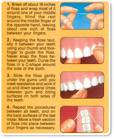 Facts on flossing for What is flossing