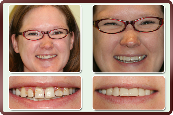 Miranda had teeth that appeared small due to excessive gums covering them. She also did not like the spaces between the teeth. Laser gum lift along with placing of Componeers, a composite veneer procedure, on her upper front teeth gave her a complete smile makeover increasing her self-esteem, making her want to smile all the time. Ask Dallas cosmetic dentist, Dr. Daftary how veneers can help change your smile to a dazzling one!!!