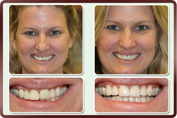 What Is The Best Type Of Crown For Front Teeth - TeethWalls
