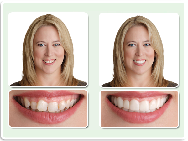 Snap-on Instant Smile | Snap-on Dallas - Prestonwood Dental